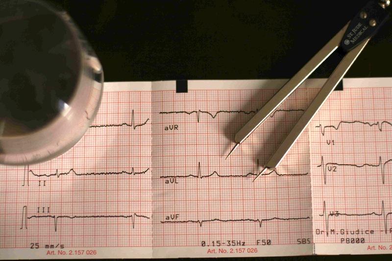 Visita-cardiologica-ed-Elettrocardiogramma-(ECG)